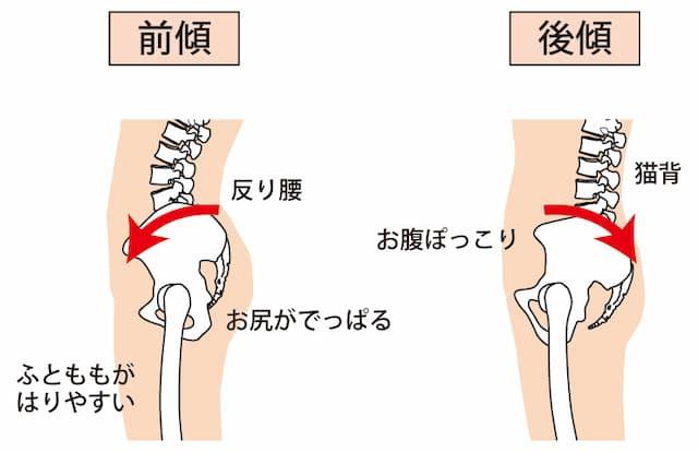 骨盤の前傾が反り腰を引き起こす